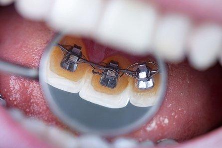 dentures4.jpg