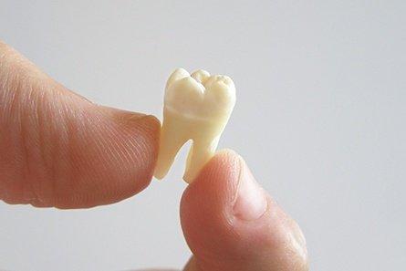 teethextraction1.jpg